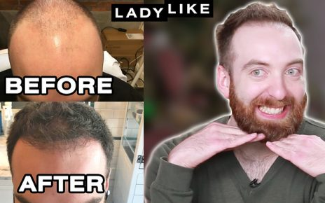 Here's What Hair Looks Like One Year After A Robotic Hair Transplant